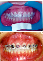Orthodontics Images